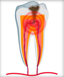 Root Canals Help With Infection - Endodontics For Meridian ID Patients