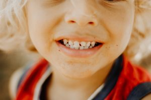 Child with a chipped tooth emergency dentist in Boise